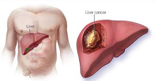 Cáncer de hígado en CDMX/DF